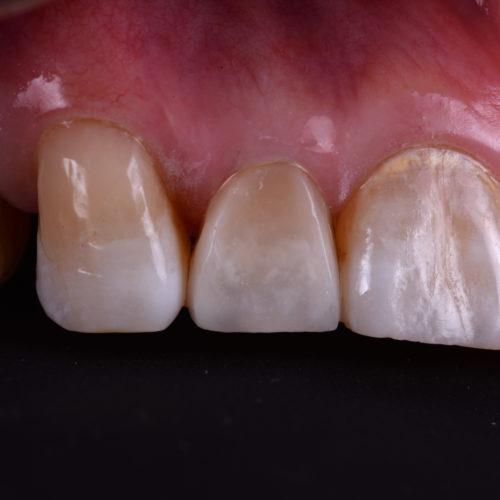 大切な歯を守るためにイメージ